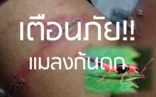 เตือนภััย!! ระบาดหนักเนื้อตัวพุพองเพราะแมลงก้นกระดก
