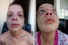 """หญิงสาวเปิดเผยภาพ """"เรือนร่างอันบอบช้ำ"""" ของตัวเอง หลังจากที่ต้องตกเป็นเหยื่อการค้ามนุษย์"""