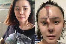 หวีดสยอง!!ศัลยฯเกาหลี พังพินาศ สาวจมูกเน่าหน้าพังผ่ากลางร่องถึงหน้าผาก(มีภาพ)