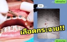 ทันตแพทย์เตือนคนดัดฟัน!! หลังคนไข้ปรึกษาเกิดเหตุฉุกเฉินเลือดกระจายเต็มเตียง!!