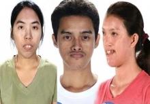 ย้อนดูLet Me In Thailand ทั้ง 12 คน ก่อนและหลังศัลยกรรม!!