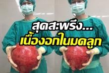 ช็อค!!เนื้องอกในมดลูก ขนาดใหญ่เท่าลูกบาส ในผู้ป่วยวัย 52 ปี