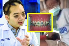 อึ้ง!! หมอแลบ แพนด้า โพสต์ เด็กตัวกระเปี๊ยกรับจัดฟันเถื่อน. วอนตรวจสอบ!