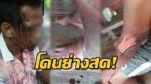 โหดเหี้ยม!! หนุ่มพิการ ถูกทำร้าย แถมราดน้ำมันจุดไฟเผาหวังย่างสด คลานหนีตาย!