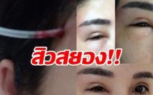 สยอง!! ผู้ประกาศสาวสวยไปฉีดสิว สุดท้ายติดเชื้อรุนแรง ตาเกือบบอด เสี่ยงเสียชีวิต!!