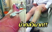 หญิงวัยกลางคนเกิดอาการ 'ขาบวมจนแตก' หลังจากทำสิ่งนี้!!