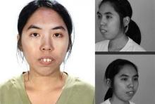 ตะลึง!ตึงตึง !สาว 'ศัลยกรรม'พลิกชีวิต 'คนแรกของไทย'!