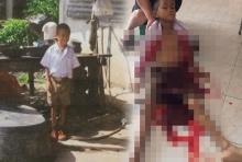 เลือดท่วมตัว!!วอนช่วยดช.7 ขวบเป็นหลายโรค จนอาเจียนเป็นเลือด แต่ไม่มีเงินรักษา
