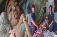 วอนช่วยเหลือ!! ด.ช.13 ป่วยทางสมองนอนติดเตียงกว่า4ปี ทุกวันนี้ ยื้อชีวิตรอความตาย ไปวันๆ!!
