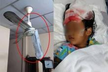 วอนช่วยค่าผ่าตัด!!พ่อเล่นโยนกับลูก ถูกพัดลมเพดานสับถึงกระโหลก