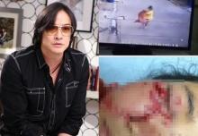 โจ จิรายุส โพสต์ข้อความเดือด กรณีหมากัดเด็ก